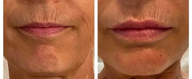 Lippen Renatajpg