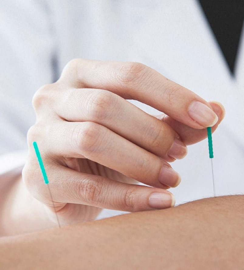 physio du sport,physiothera swiss,dry needling orbe
